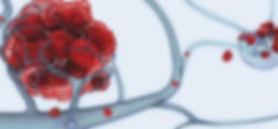 метастазы рака печени
