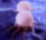 рак груди 2 стадия