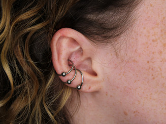 Healed Triple Conch