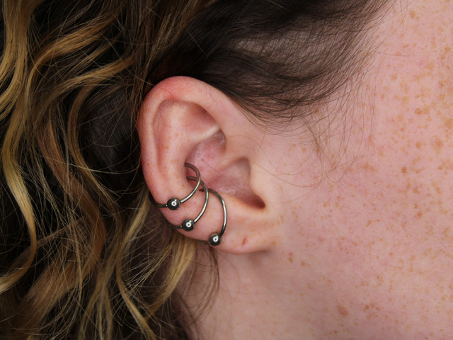 Healed Triple Conch