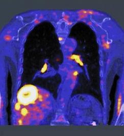 MATLAB-Cancer Treatment-2.jpg