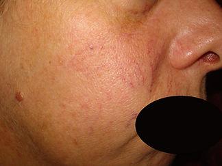Capillari volto | Dr. Andrea Platamone