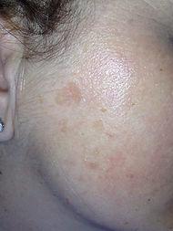 macchie volto, Dr. Andrea Platamone, agrigento dermatologo