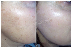 macchie volto, trattamento laser agrigento, luce pulsata agrigento, lentigo volto, fotoringiovanimento agrigento