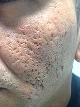trattamento cicatrici acne agrigento