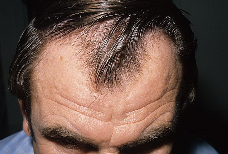 androgenic-alopecia-men-2-a-foto.jpg
