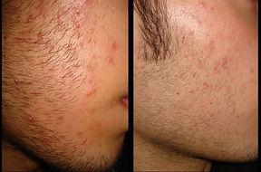 acne, cicatrici acne, dermatologo agrigento, agrigento dermatologo,
