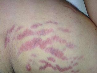dermatologo Agrigento, trattamento smagliature agrigento, smagliature agrigento, laser frazionato smagliature