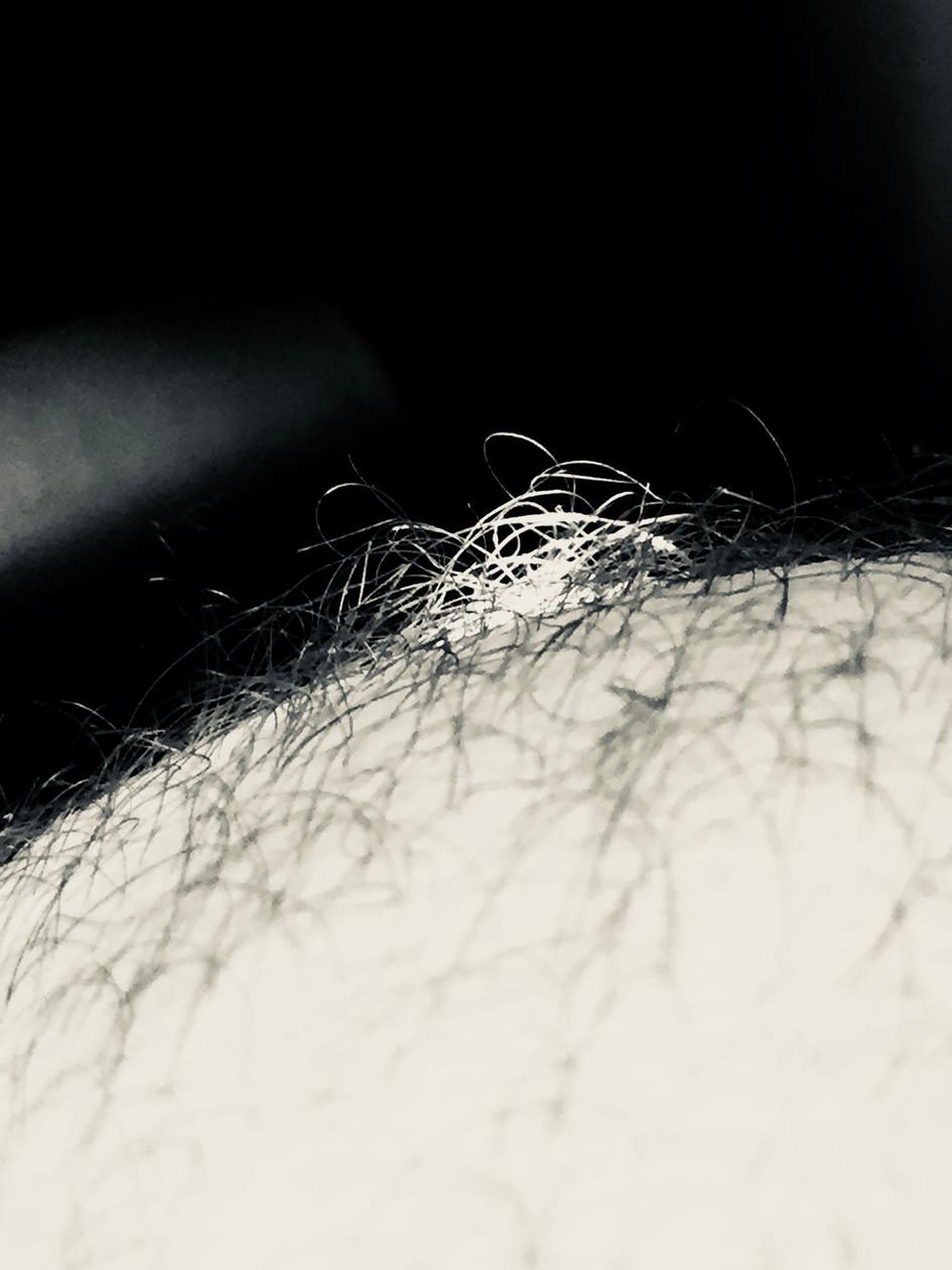 Light& Hairs