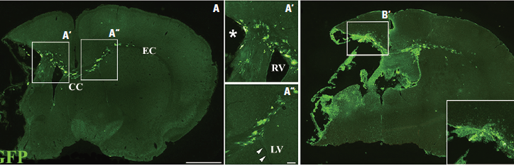 2020. Cellular Response of Ventricular-Subventricular Neural Progenitor/Stem Cells to NeonatalHyp...