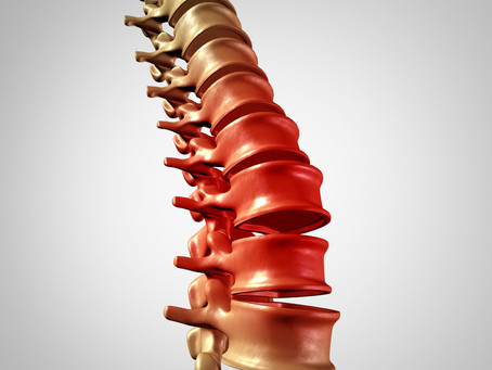Yoga and Low Back Pain Part II - Causes, Correlates, and Consequences