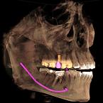 implantes_dentales_ Bahia Blanca