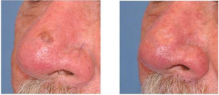face vascular lesion removal.balancedsou