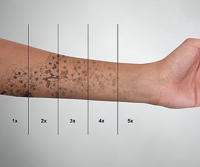 laser tattoo removal.jpg