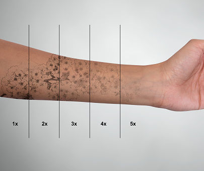 laser tattoo removal.jpg