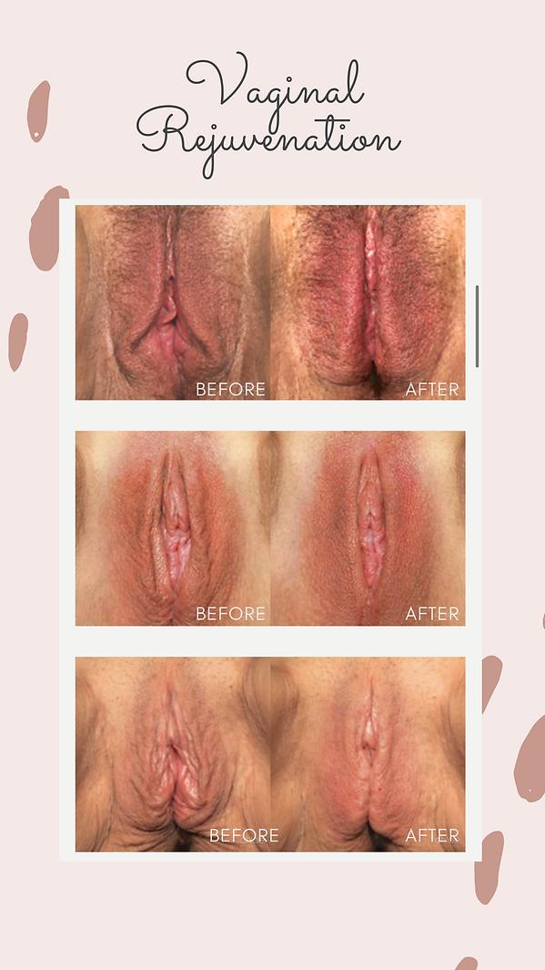 vaginalrejuvenationbeforeandafter.png