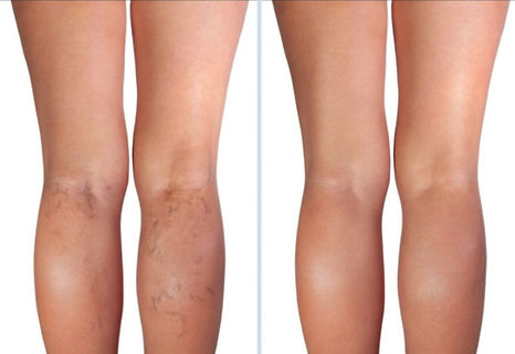 vein removal vascular reduction blood vessels on face