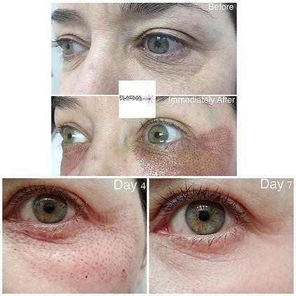 eye plasma 2.jpg