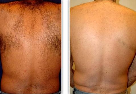 laser hair removal.balancedsoulwellness