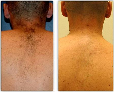 laser hair removal. balanced soul wellne