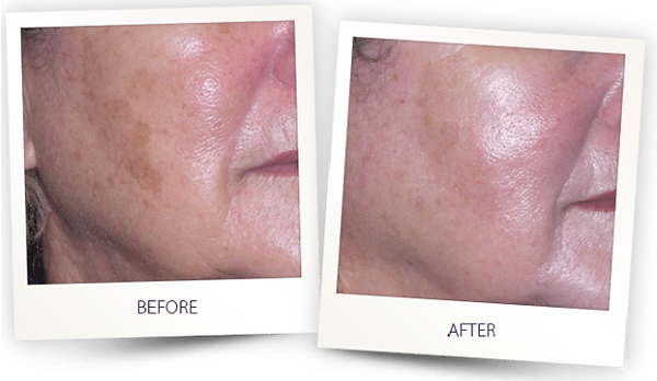 erbium Yag skin resurfacing pigmentation correction skin rejuvenation skin tightening acne scars.png