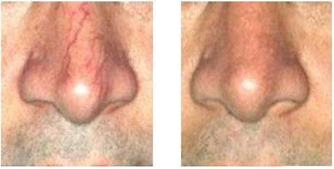 facial vein removal.balancedsoulwellness
