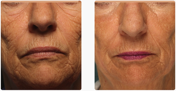 co2 skin resurfacing face deep wrinkle correction pigmentation skin texture how to get rid of acne scars