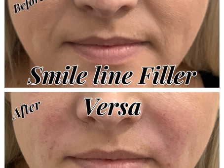 Best Treatments for Nasolabial Folds and Marionette Lines