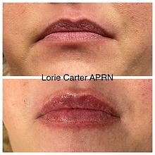 Lip filler balanced soul wellness 102.JPG.jpeg.heic