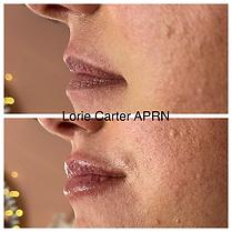 Lip filler balanced soul wellness 101.JPG.jpeg