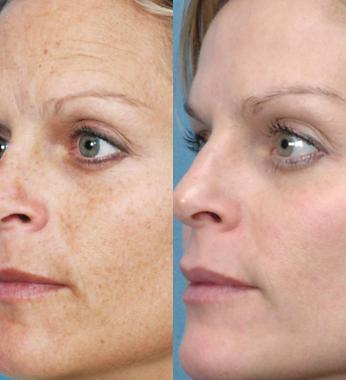 IPLphotfacialbeforeandafter pigmentation correction.png