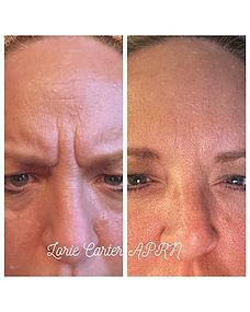 Botox Balanced soul wellness day spa 11.jpg