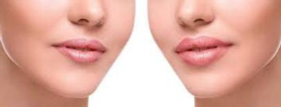 lip image.jpg