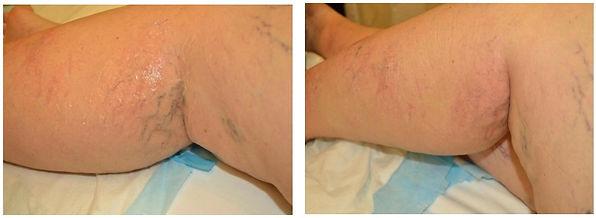 leg vein removal.balancedsoulwellness.jp