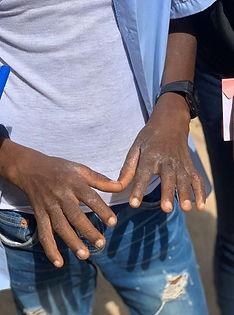 Salum's hands.JPG