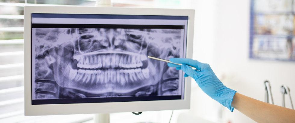 Radiographie numérique | CHTDL