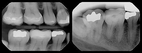 Radiographie numérique | Chtdl.jpg
