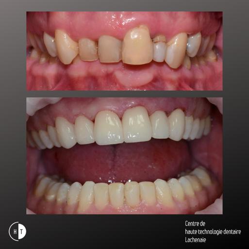 Facettes dentaire