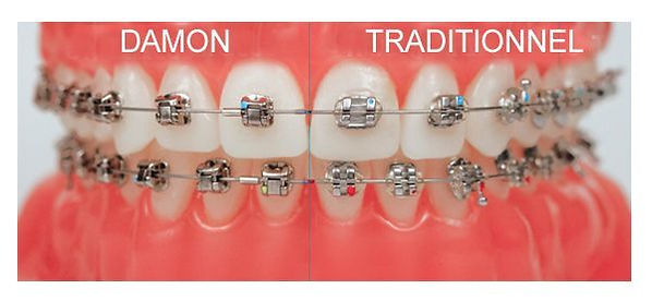 Orthodontie conventionnelle | Chtdl