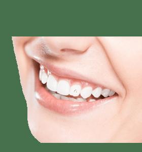 brio dentaire | Chtdl