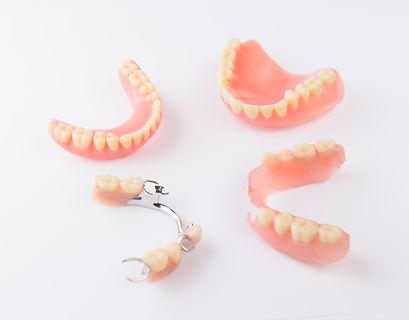 Prothèse dentaire   Chtdl