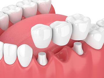 pont dentaire | Chtdl
