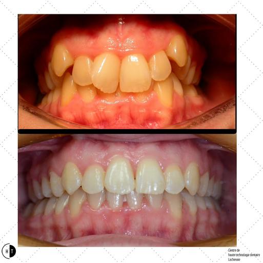 Traitement d'orthodontie