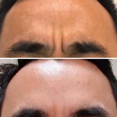 Anti Wrinkle 17.jpeg