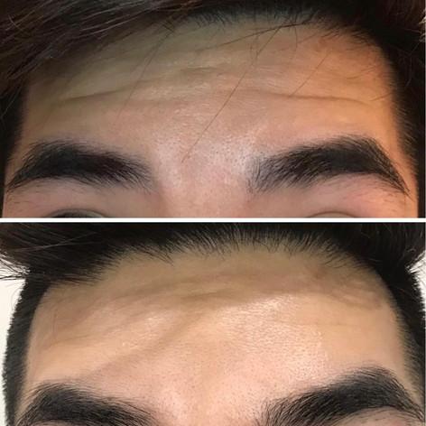 Anti Wrinkle 2.jpeg