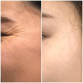 Anti Wrinkle 12.jpeg