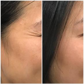 Anti Wrinkle 6.jpeg