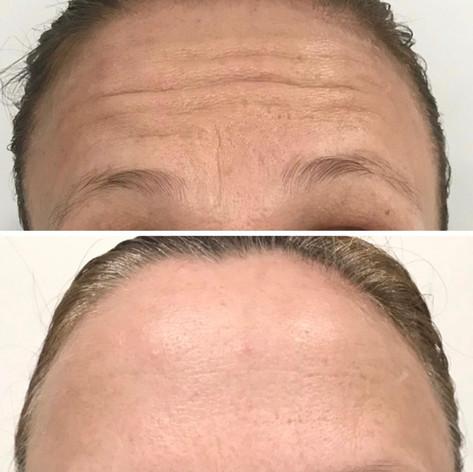 Anti Wrinkle 3.jpeg