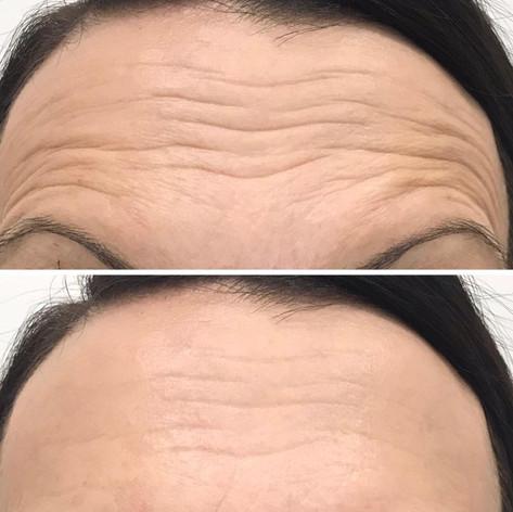 Anti Wrinkle 1.jpeg