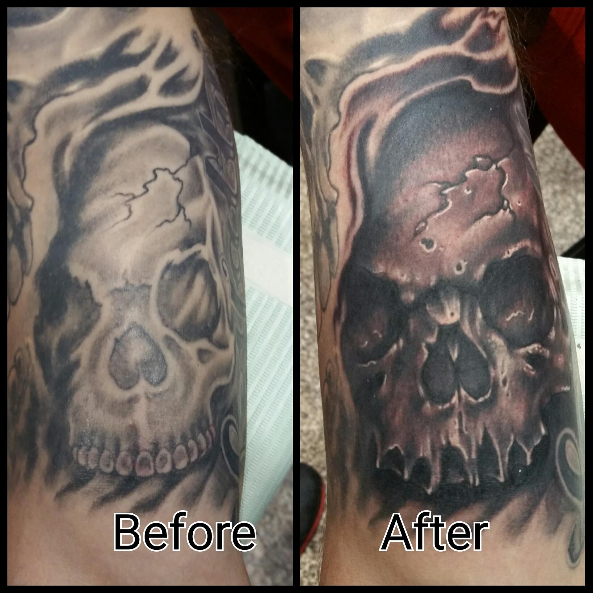 Skull fixer